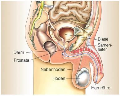 prostata op danach bestrahlung
